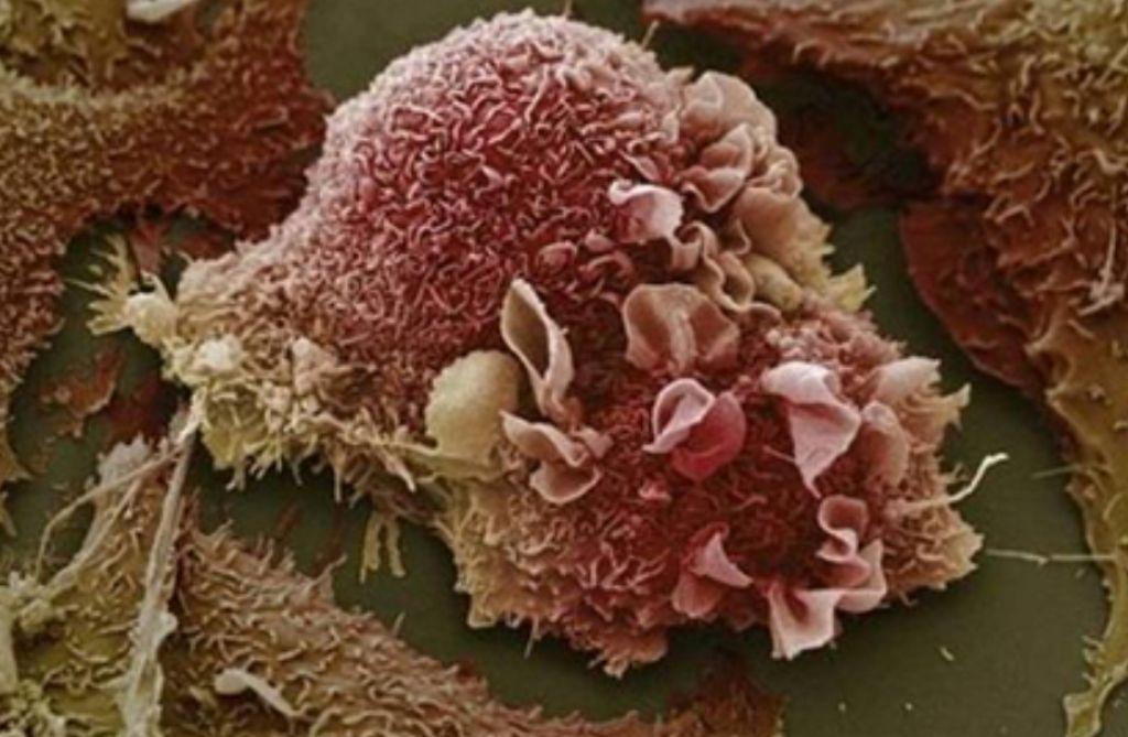 Vse več žleznega pljučnega raka pri ženskah