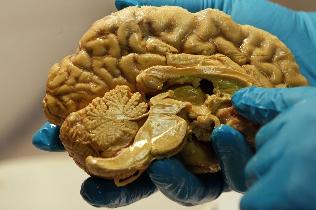Epilepsija: Diagnoza, ki jo pri nas postavijo 2000-krat na leto